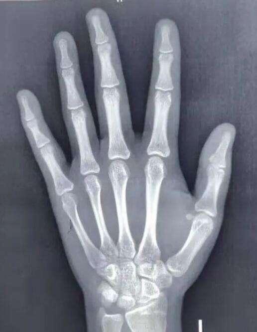 手掌X光摄像