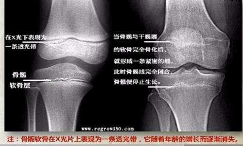 骨骺线X光片